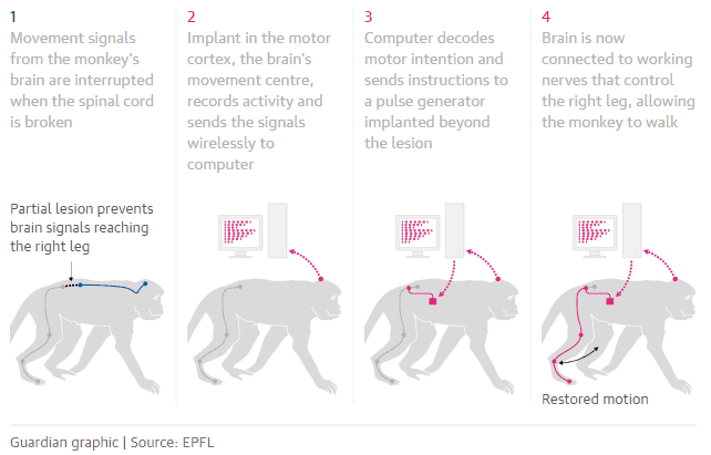 How the brain implant helps monkey paralysis